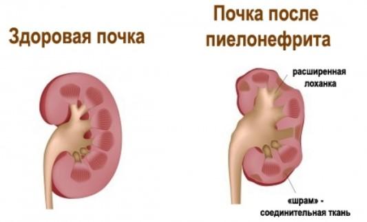 пиелонефрит лечение