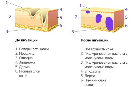 Гиалуроновые инъекции до и после