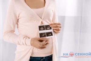 Допплер при беременности